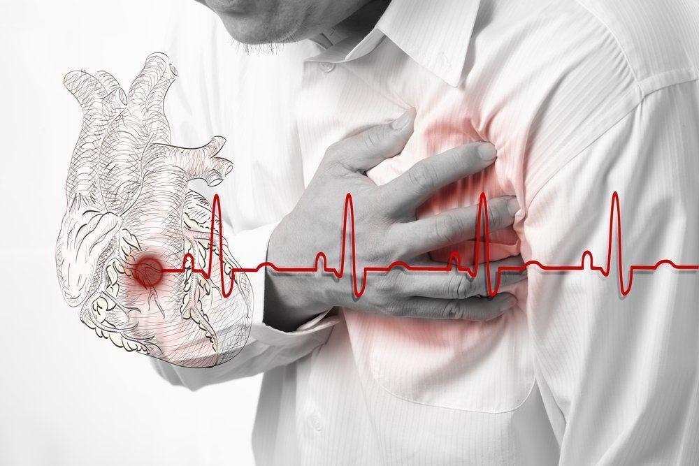 Pertolongan Pertama Pada Serangan Jantung
