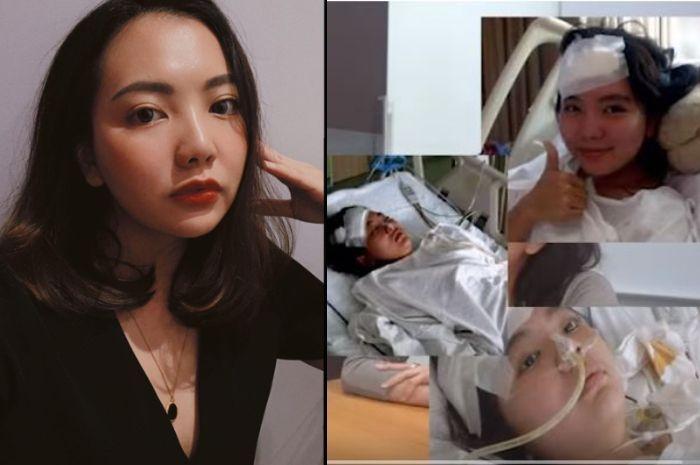 Pernah Ditusuk Teman 17 Kali Hingga Paru-parunya Bocor, Kini Wanita Ini Merasa Bersyukur