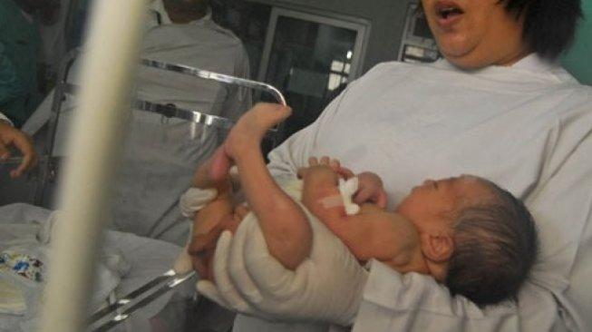 Bayi Kelamin Ganda Lahir di Sumsel, Tumbuh Penis di Usia Setahun