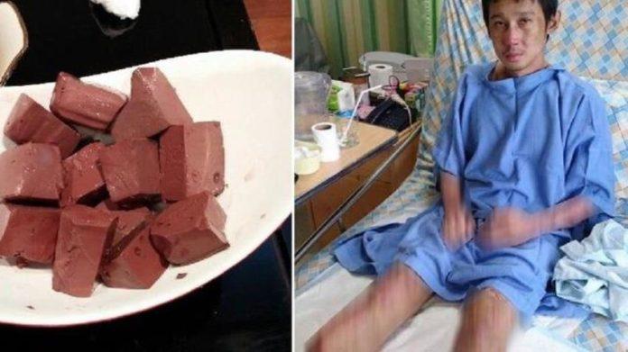 Akibat Makan Darah Babi, Kedua Kaki Pria ini Terpaksa Harus di Amputasi