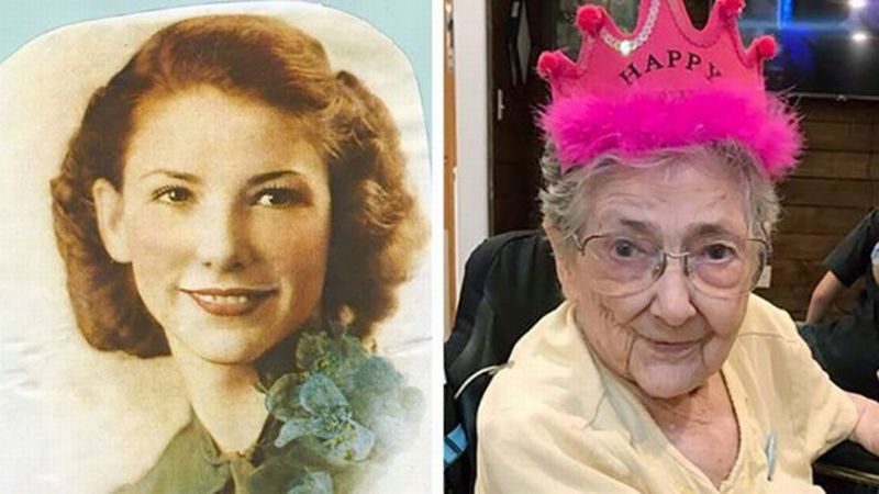 Nenek Ini Hidup 99 Tahun dengan Organ Tubuh yang Salah Tempat