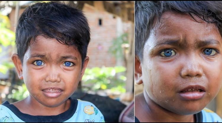 Dikira Pakai Softlens, Mata Bocah Bermata Biru Asal Sulawesi  Ini  Ternyata Asli