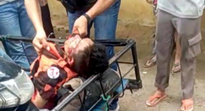 Bentrok OKP Loreng Merah dan Loreng Biru di Medan,  dua orang luka parah
