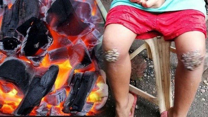 Astaga, Masih Ada Ibu Tega Bakar Lutut Anaknya, Hanya Disangka Bolos Sekolah