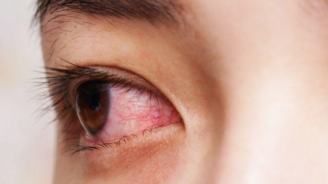 5 Gejala Virus Corona yang Tidak Biasa